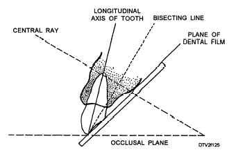 Average Vertical Angulation